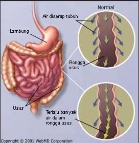 Definition of Diarrhea